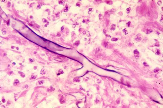 Mucormycosis Hyphae