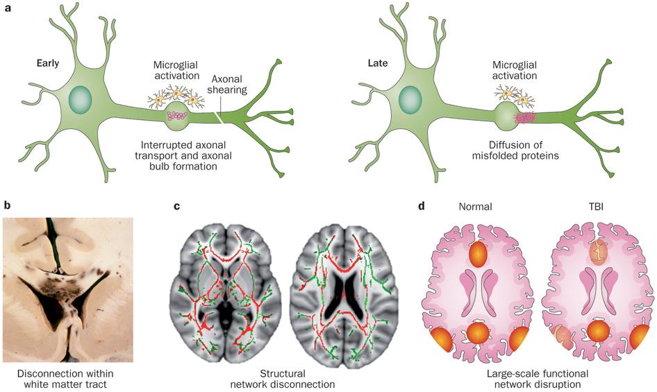 Diffuse Axonal Injury - Neurology - Medbullets Step 2/3