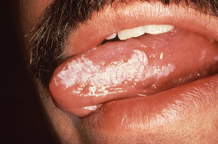 White corrugated plaque on left lateral tongue border