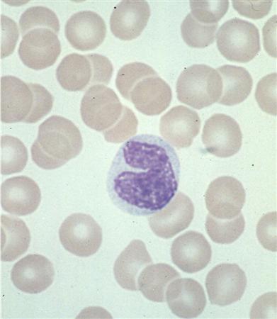 http://upload.medbullets.com/topic/111002/images/monocyte1.jpg