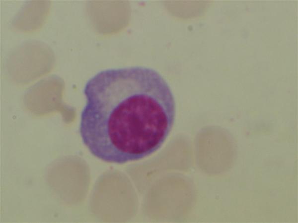 http://upload.medbullets.com/topic/111002/images/plasma_cell_plasmocyte_photo.jpg