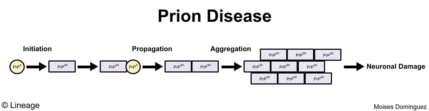 causes of prion diseases Prion diseases information including symptoms, diagnosis, misdiagnosis, treatment, causes, patient stories, videos, forums, prevention, and prognosis.