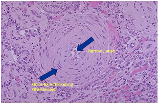 Renal biopsy showing hyperplastic arteriolosclerosis as a product of malignant hypertension.