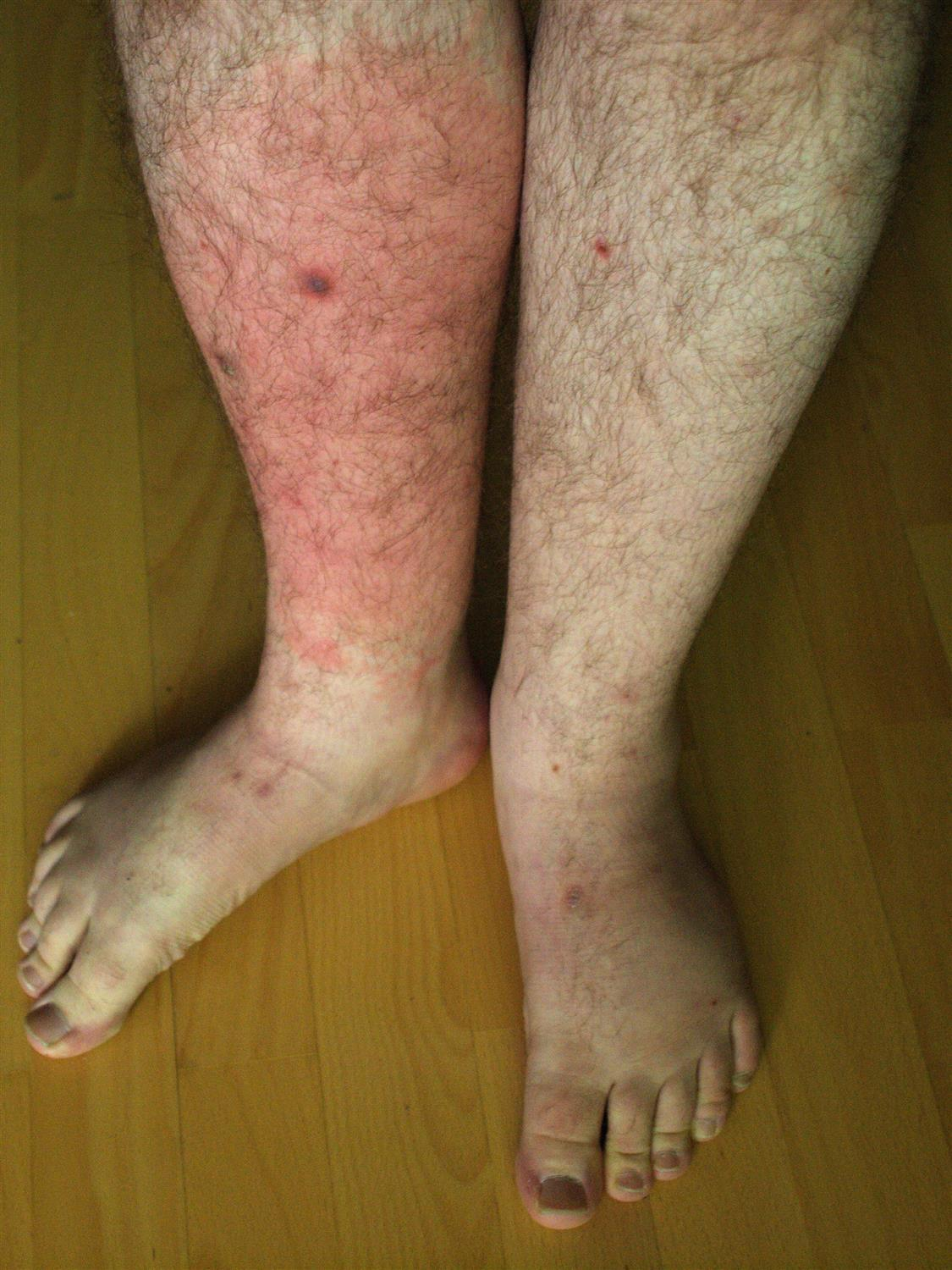 Skin Irritation Dogs Pictures