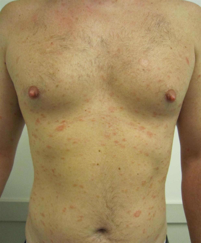 Pityriasis Rosea Dermatology Medbullets Step 2 3