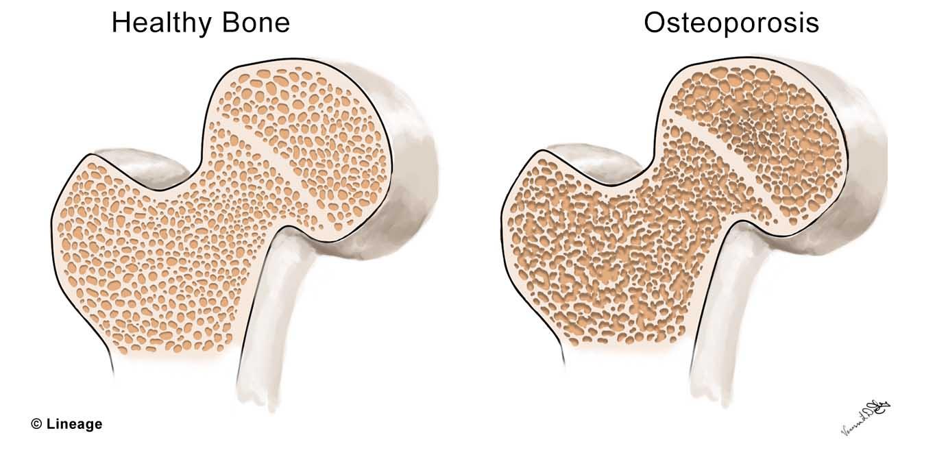 Osteoporosis Orthopedics Medbullets Step 2 3