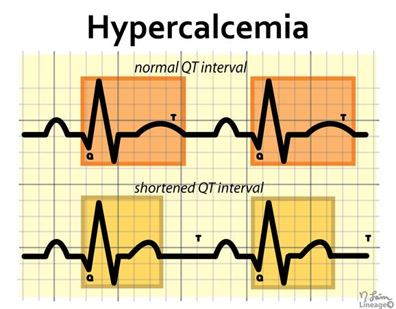 Electrolyte Abnormalities - Basic and Bedside ...