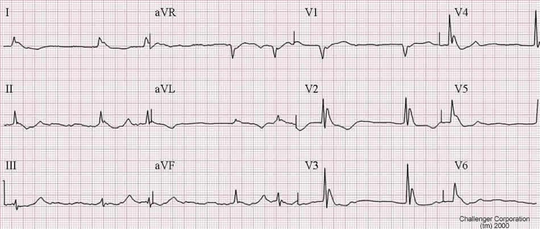 EKG - Osborn waves in hypothermia