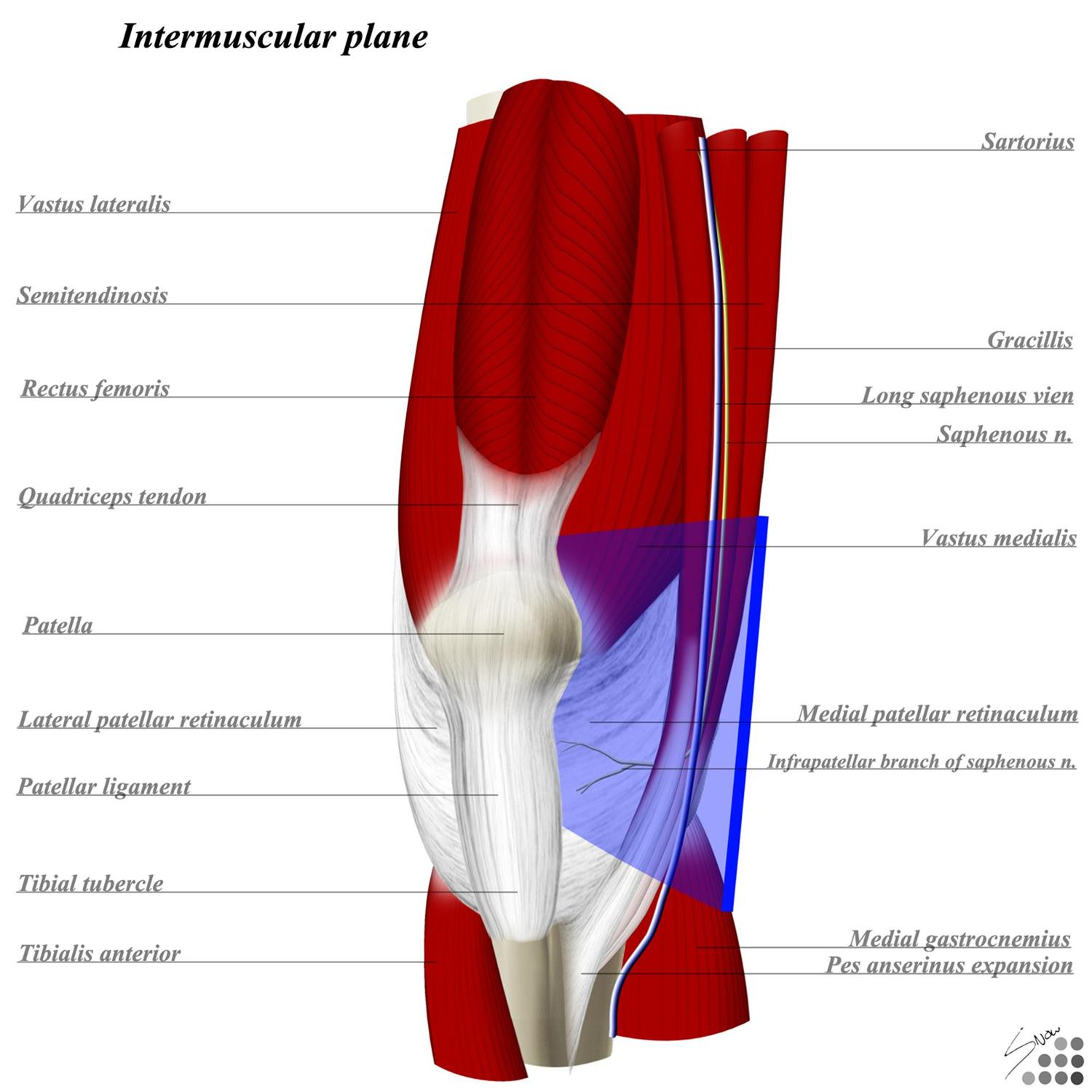 Knee Parapatellar Approach