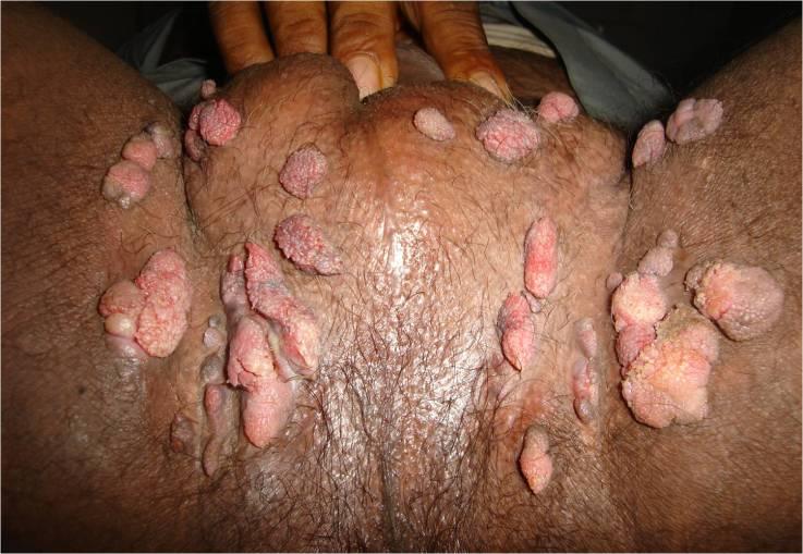 Human Papilloma Virus Infectious Dis Medbullets Step 2 3