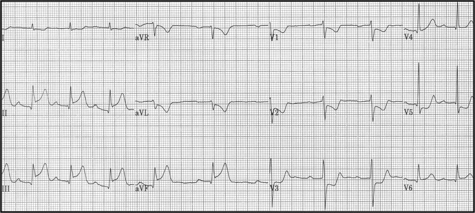 Myocardial Infarction Cardiovascular Medbullets Step 23
