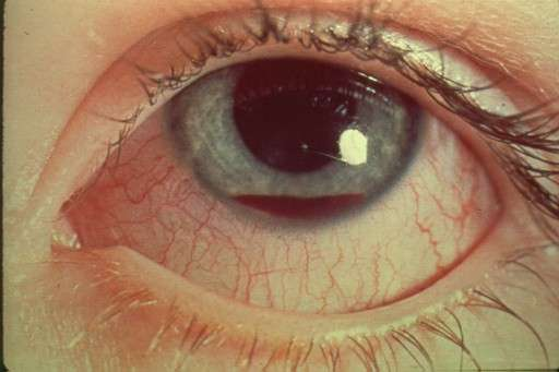 hyphema pictures herpes zoster shingles infectious dis medbullets 5114