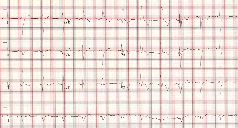 Pulmonary Embolism Pulmonary Medbullets Step 2 3