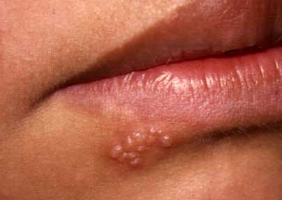 Herpes vaginalis