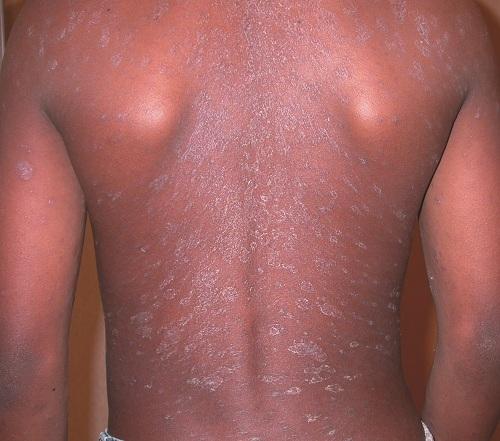 Pityriasis Rosea Dermatology Medbullets Step 23