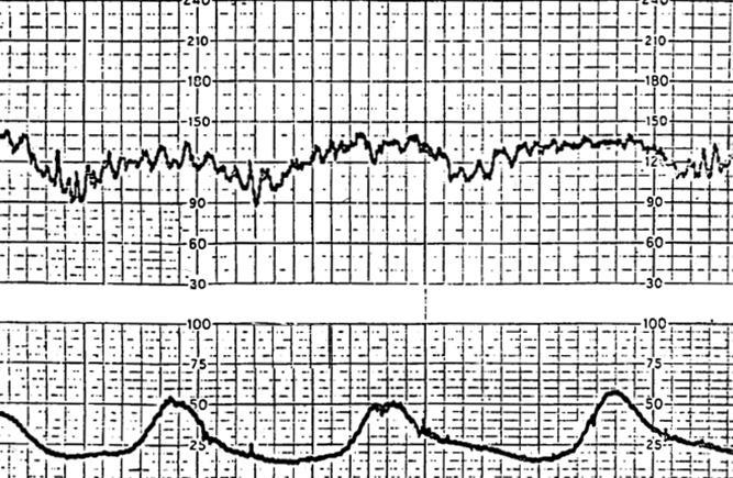 Abruptio Placentae - Obstetrics - Medbullets Step 2/3