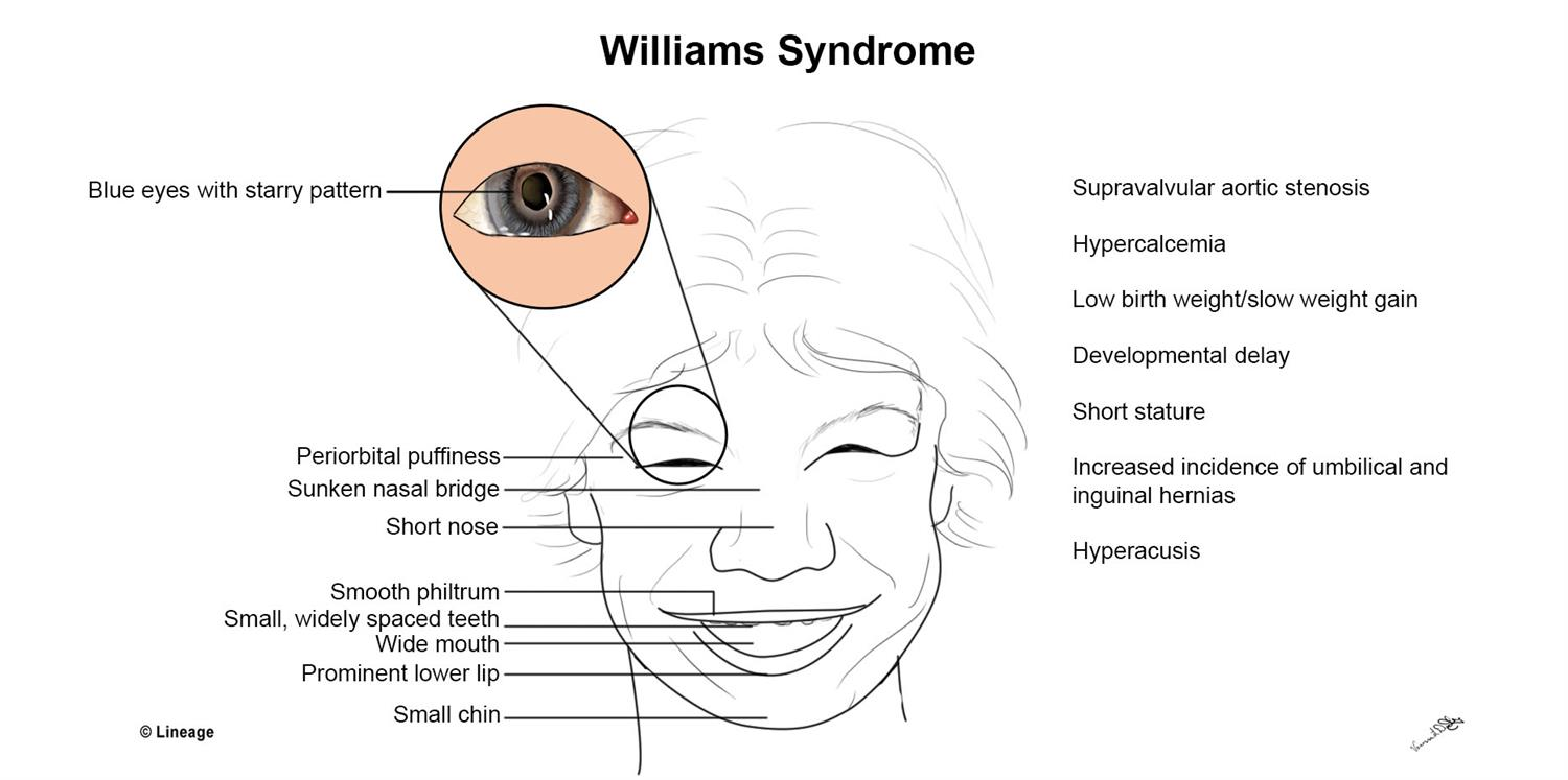https://upload.medbullets.com/topic/102035/images/william_syndrome.jpg