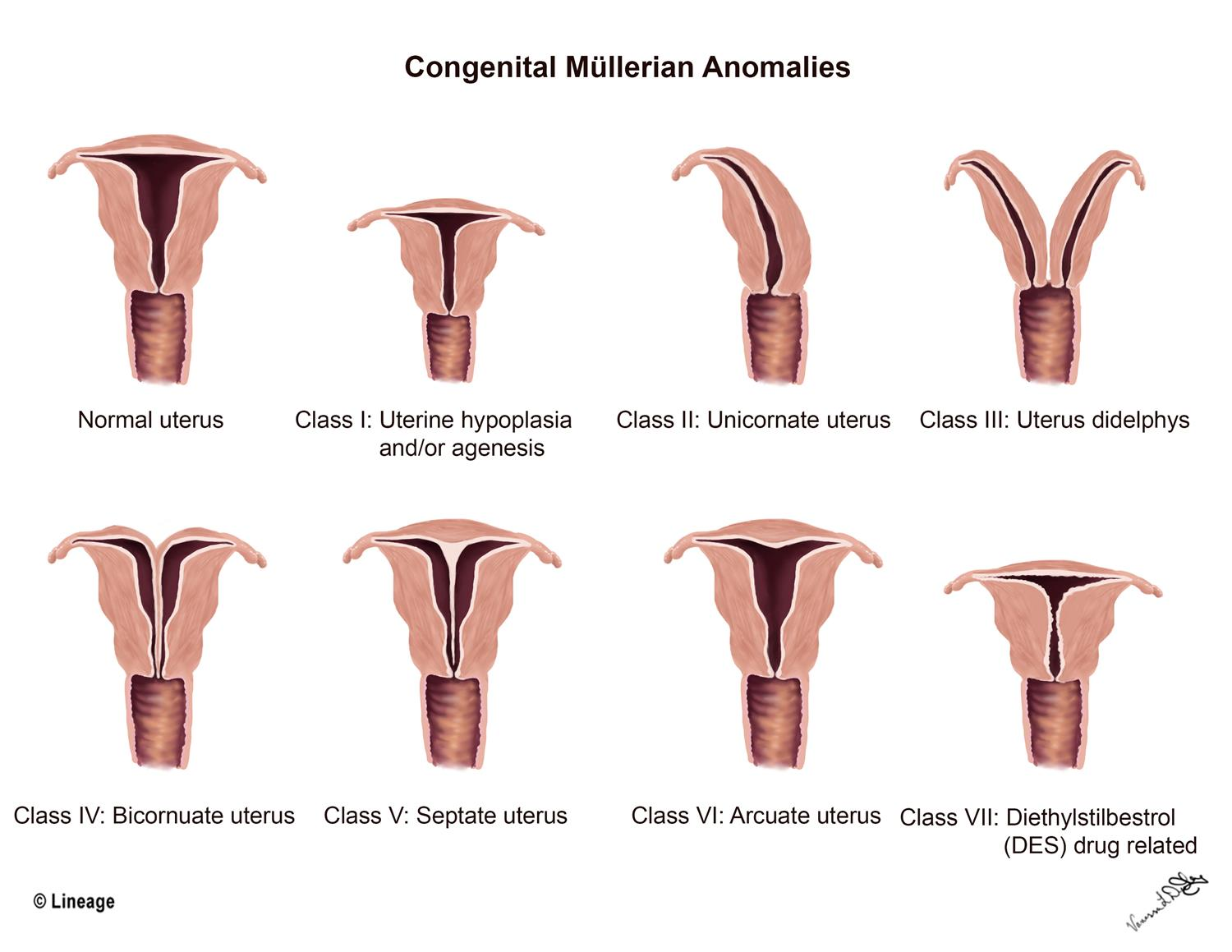 https://upload.medbullets.com/topic/103029/images/uterine_abnormalities.jpg