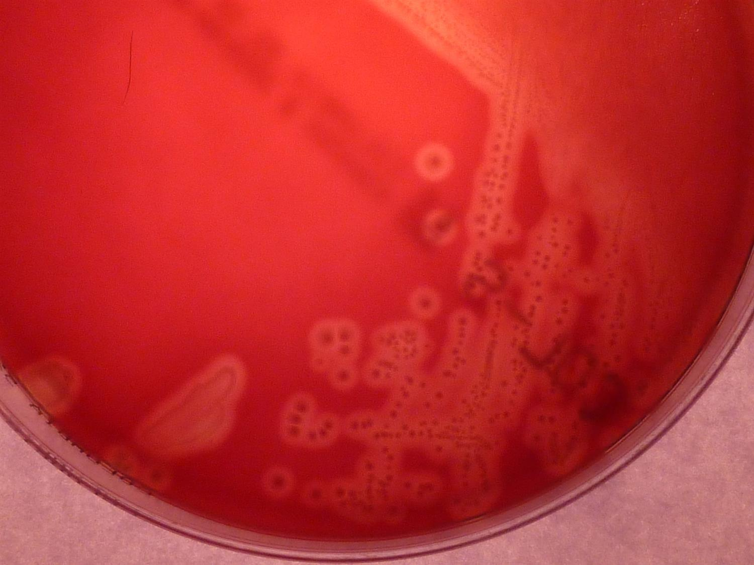 https://upload.medbullets.com/topic/104031/images/streptococcus_agalactiae_on_blood_agar.jpg