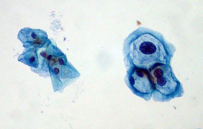 laryngeal papillomatosis usmle)
