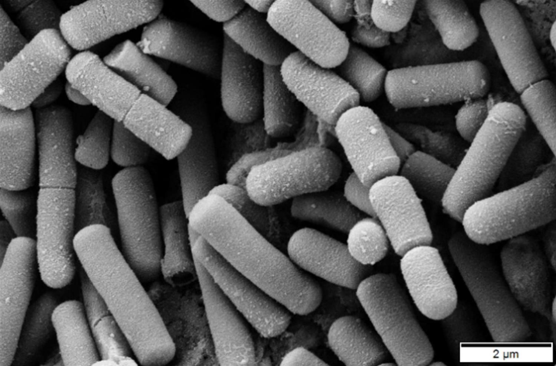 bacillus cereus microbiology medbullets step 1
