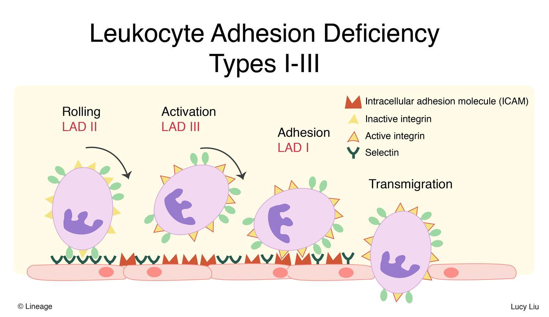 Leukocyte Adhesion Deficiency Type I - Immunology - Medbullets Step 1