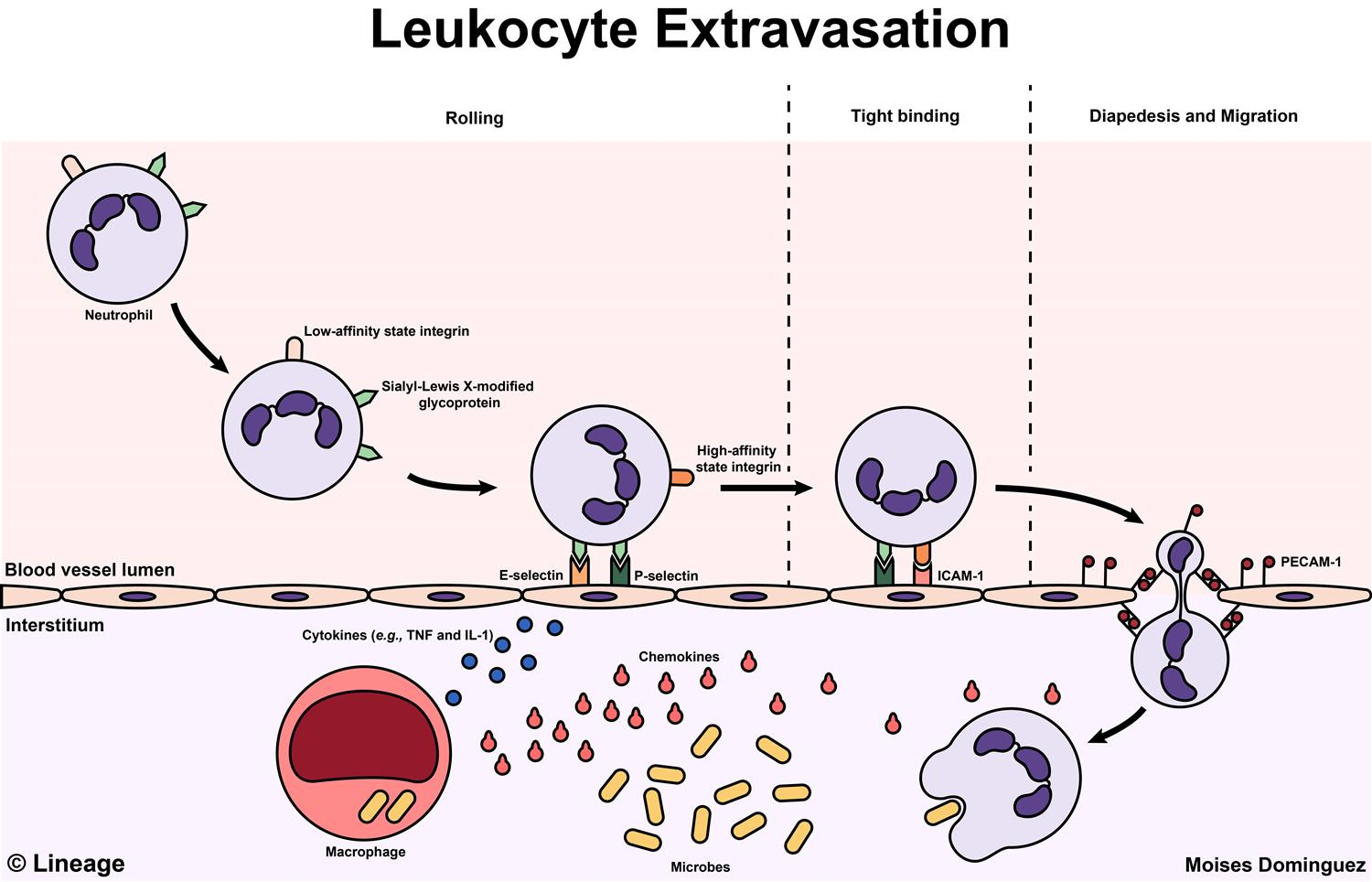 Leukocyte Extravasation - Pathology - Medbullets Step 1