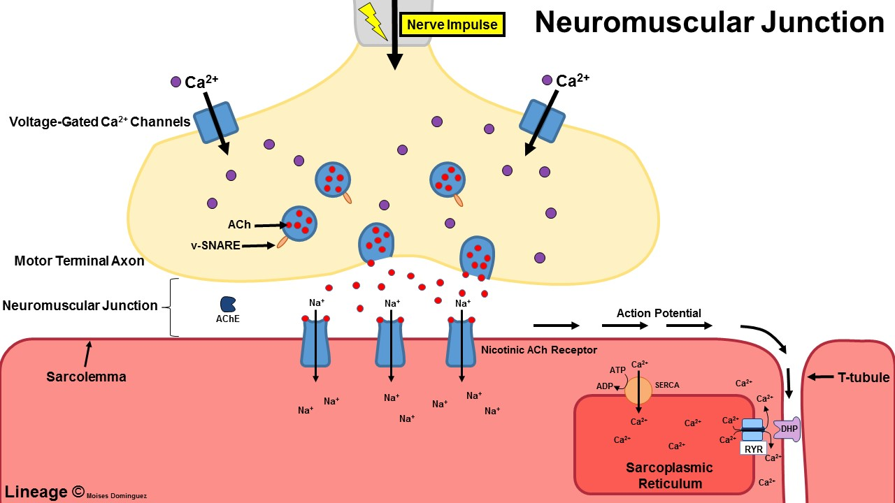 Lambert-Eaton Syndrome - Neurology - Medbullets Step 1