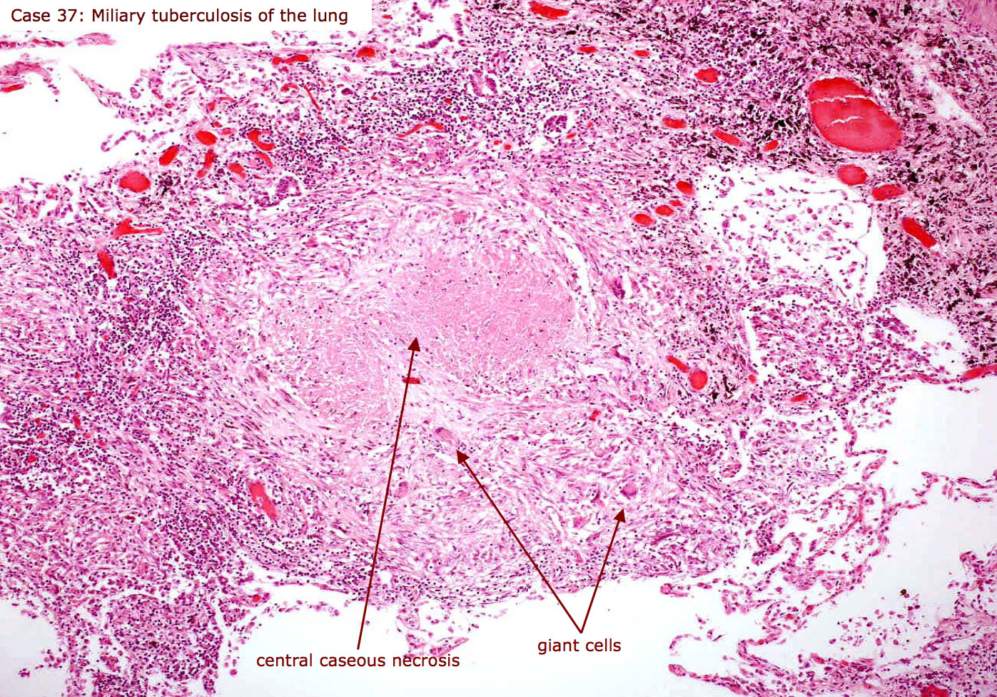 an introduction to the bovine tuberculosis the disease Bovine tuberculosis (tb) is a chronic disease of animals caused by a bacterium called mycobacterium bovis (m bovis), which is closely related to the human bacterium and avian tuberculosis.