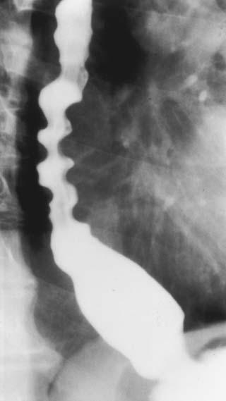 diffuse esophageal spasm gastrointestinal medbullets