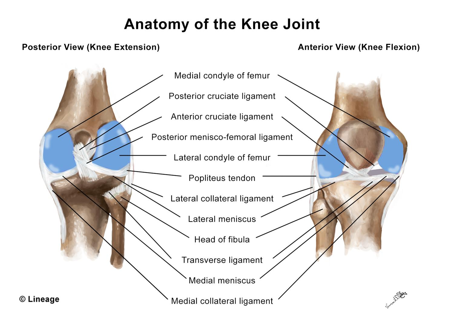 Anterior Cruciate Ligament (ACL) Injury - MSK - Medbullets Step 1