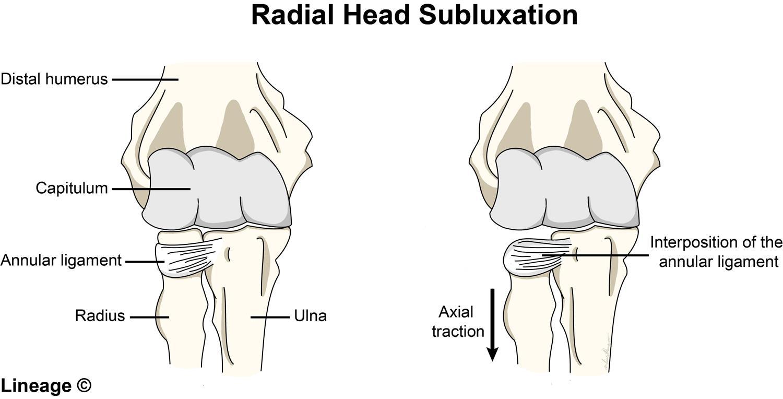 Radial Head Subluxation Msk Medbullets Step 1