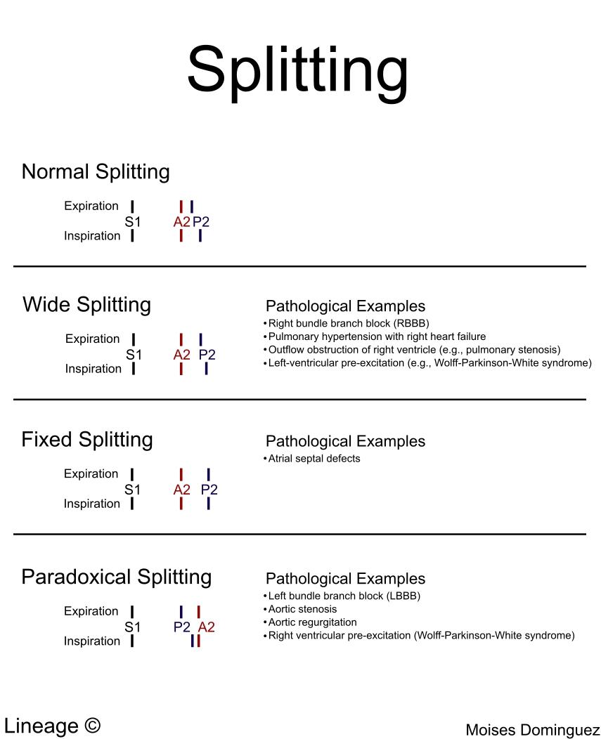 Splitting Cardiovascular Medbullets Step 1