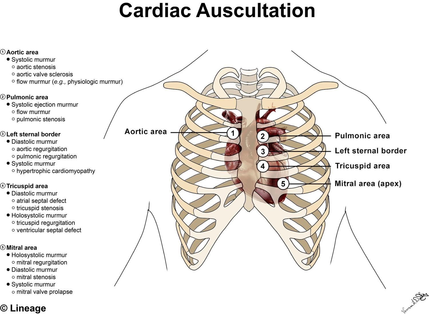https://upload.medbullets.com/topic/108013/images/082417vldstep1cardiacheartauscultation-moises edits.jpg