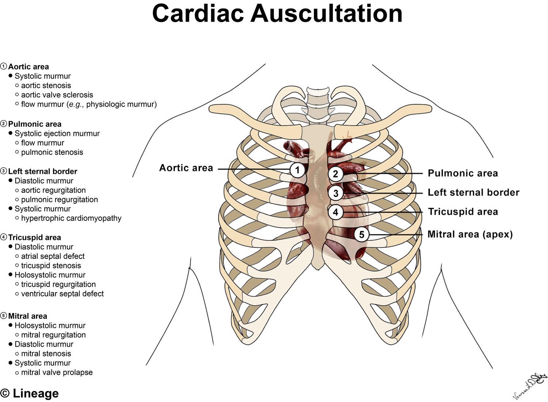 Heart Murmurs - Cardiovascular - Medbullets Step 1