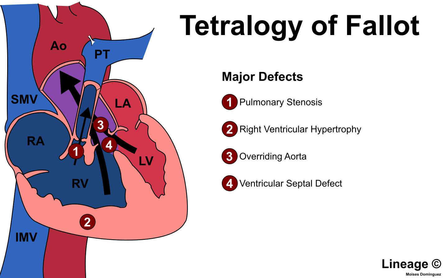 Tetralogy of Fallot - Cardiovascular - Medbullets Step 1 on retinopathy of prematurity pathophysiology, ankylosing spondylitis pathophysiology, bronchiolitis pathophysiology, pleural effusion pathophysiology, unstable angina pathophysiology, mitral valve stenosis pathophysiology, cushing's syndrome pathophysiology, meningitis pathophysiology, nephrotic syndrome pathophysiology, aspiration pneumonia pathophysiology, cardiac tamponade pathophysiology, typhoid fever pathophysiology, sarcoidosis pathophysiology, atrial flutter pathophysiology, umbilical hernia pathophysiology, alzheimer's disease pathophysiology, chronic obstructive pulmonary disease pathophysiology, mitral valve regurgitation pathophysiology, aortic stenosis pathophysiology, cardiogenic shock pathophysiology,