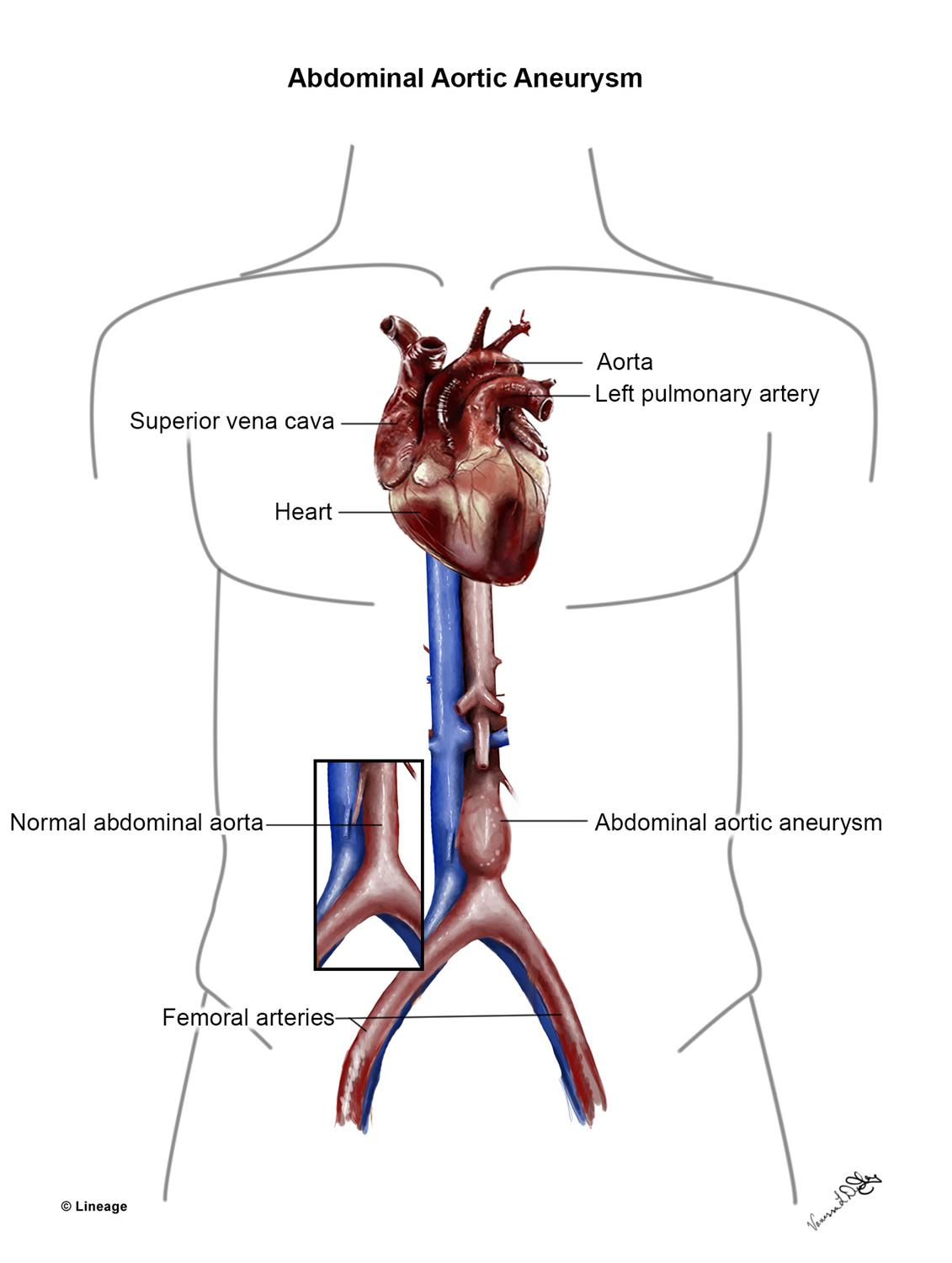 Abdominal Aortic Aneurysm - Cardiovascular - Medbullets Step 2/3