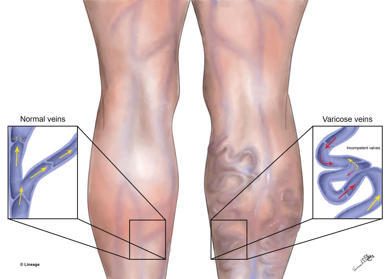 Prevention of varicose veins 40
