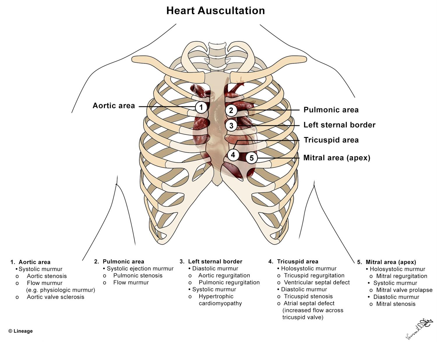 https://upload.medbullets.com/topic/108089/images/082817vldcardiacheartauscultation.jpg