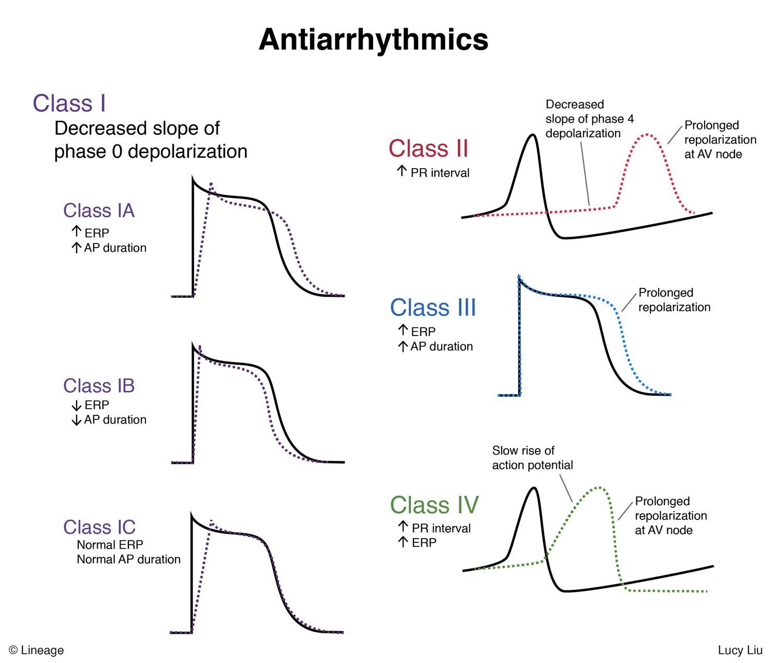 Arrhythmias - A High Yield Study Chart For Medical Students (1)