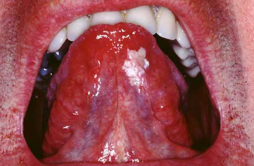 Leukoplakia - Gastrointestinal - Medbullets Step 1