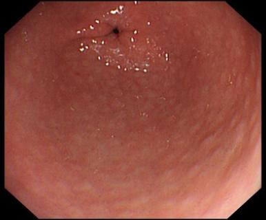 https://upload.medbullets.com/topic/110040/images/gastritis1.jpg