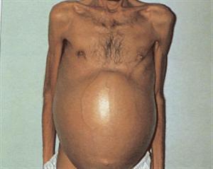 Cirrhosis - Gastrointestinal - Medbullets Step 2/3