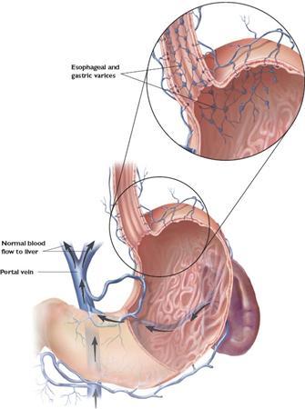 Esophageal Varices Gastrointestinal Medbullets Step 1