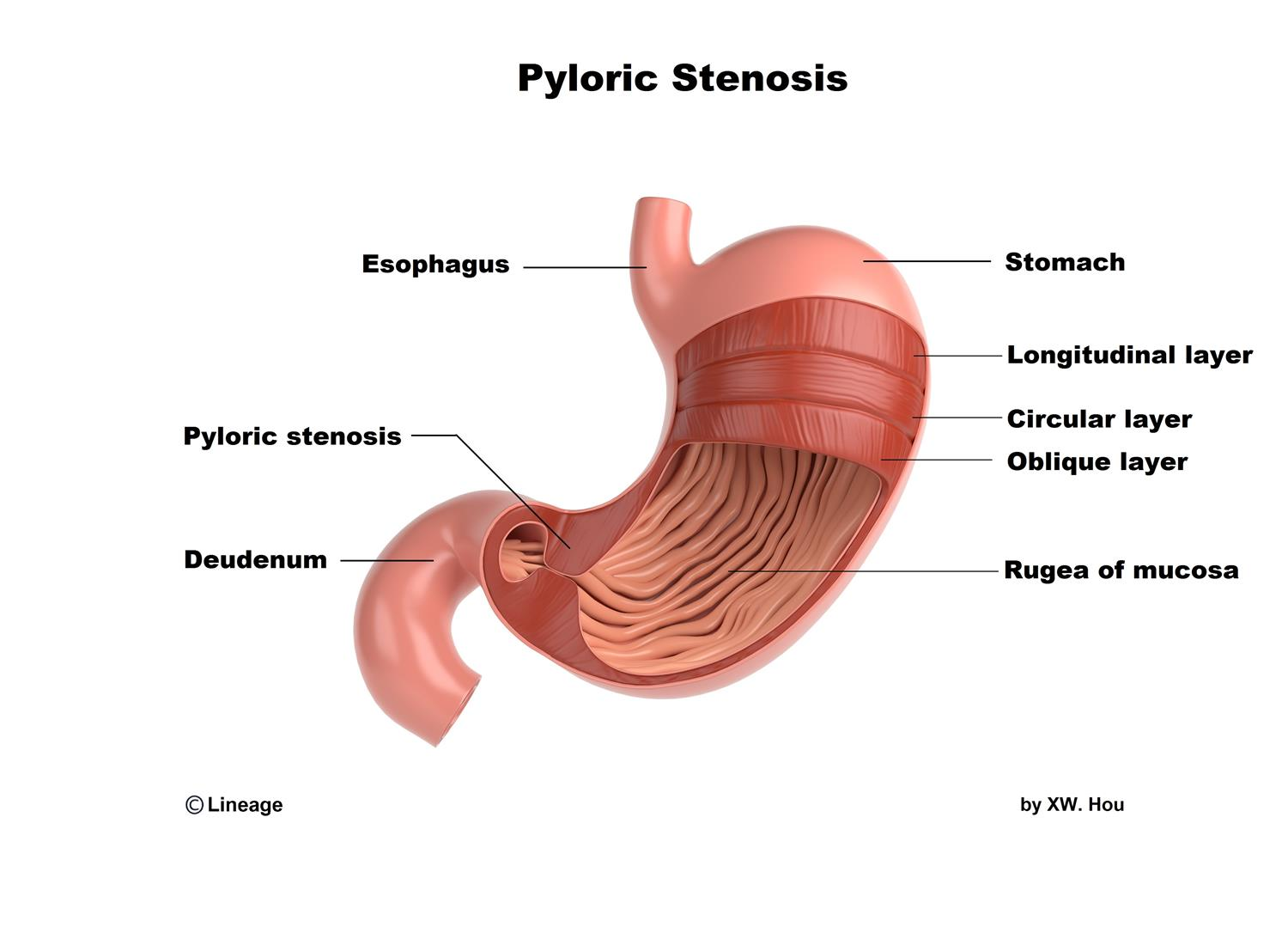 https://upload.medbullets.com/topic/110096/images/pyloric_stenosis.jpg