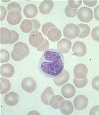 https://upload.medbullets.com/topic/111002/images/monocyte1.jpg