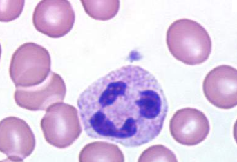 https://upload.medbullets.com/topic/111002/images/neutrophil.jpg