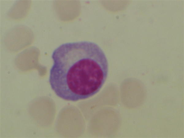 https://upload.medbullets.com/topic/111002/images/plasma_cell_plasmocyte_photo.jpg