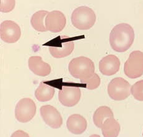 https://upload.medbullets.com/topic/111002/images/platelet.jpg