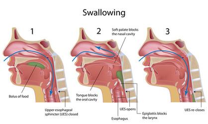 Swallowing - Gastrointestinal - Medbullets Step 1